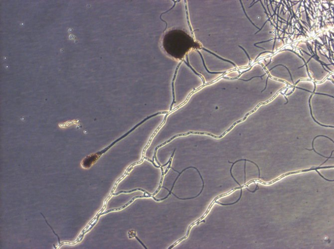 Fungus as cell culture contamination
